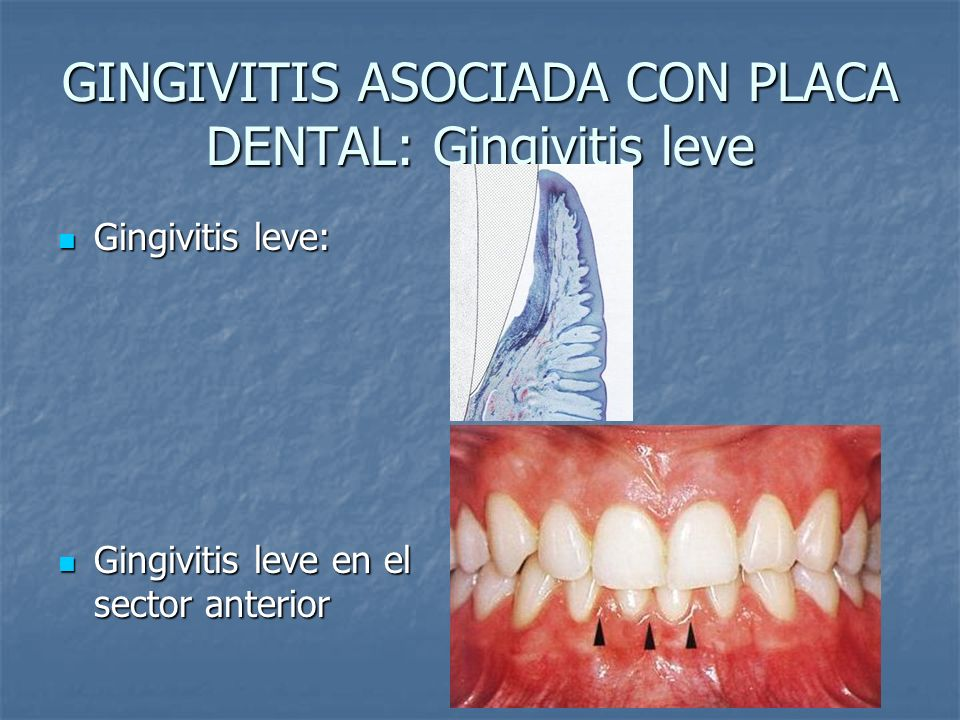 GINGIVITIS ASOCIADA CON PLACA DENTAL: Gingivitis leve