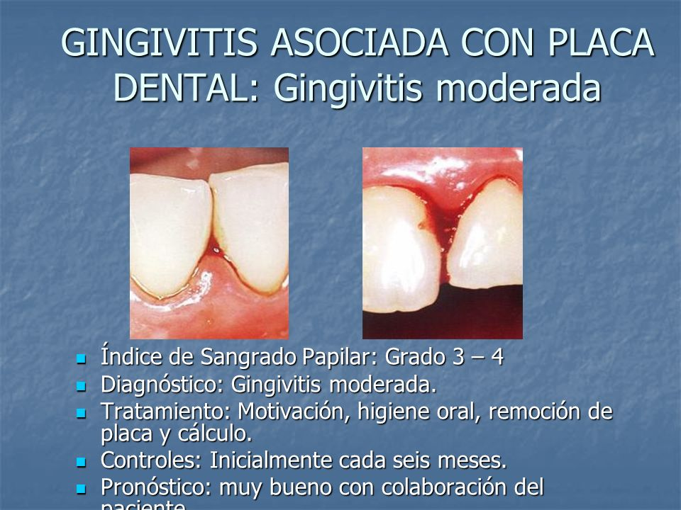GINGIVITIS ASOCIADA CON PLACA DENTAL: Gingivitis moderada