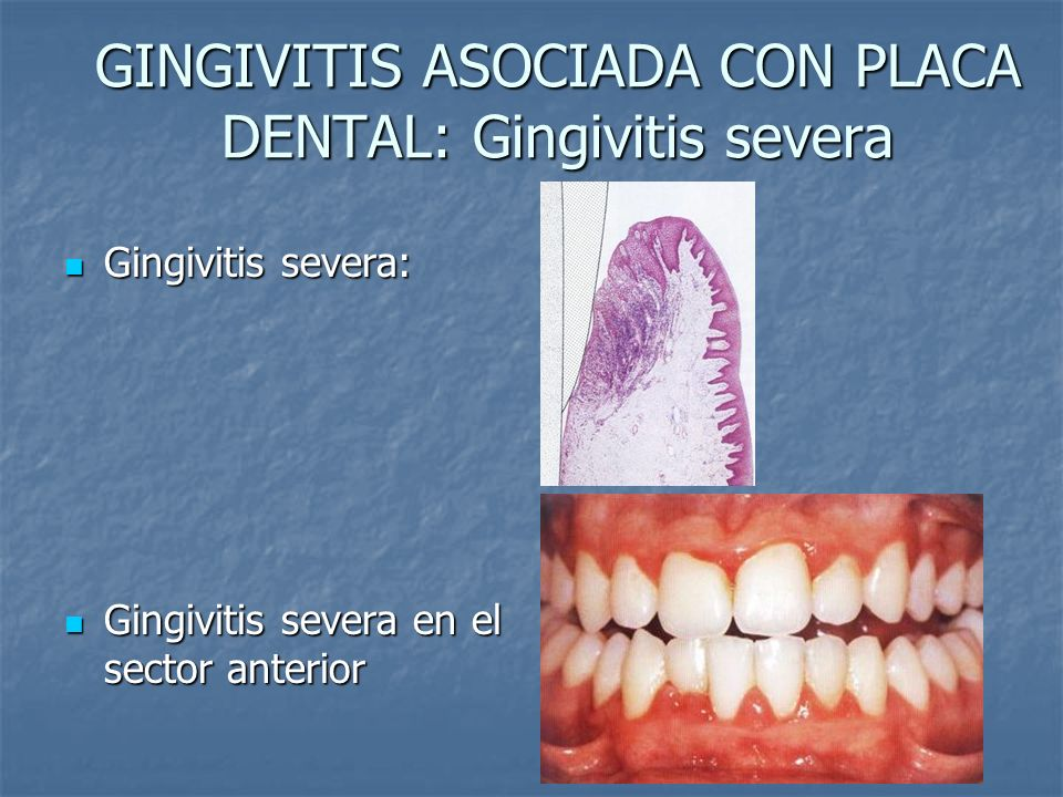 GINGIVITIS ASOCIADA CON PLACA DENTAL: Gingivitis severa