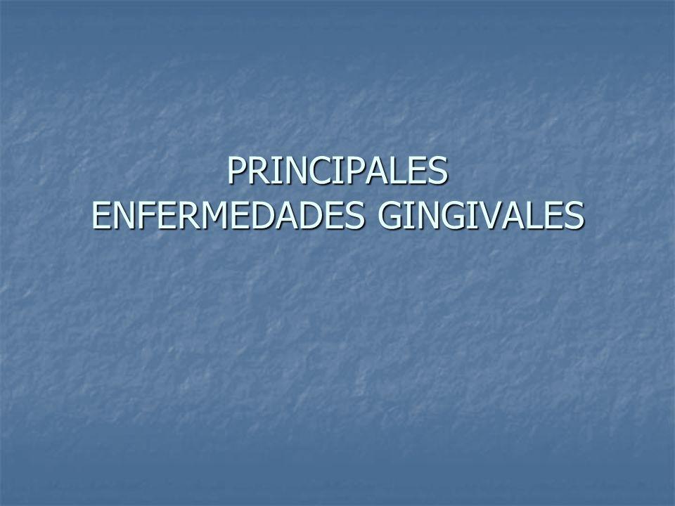 PRINCIPALES ENFERMEDADES GINGIVALES