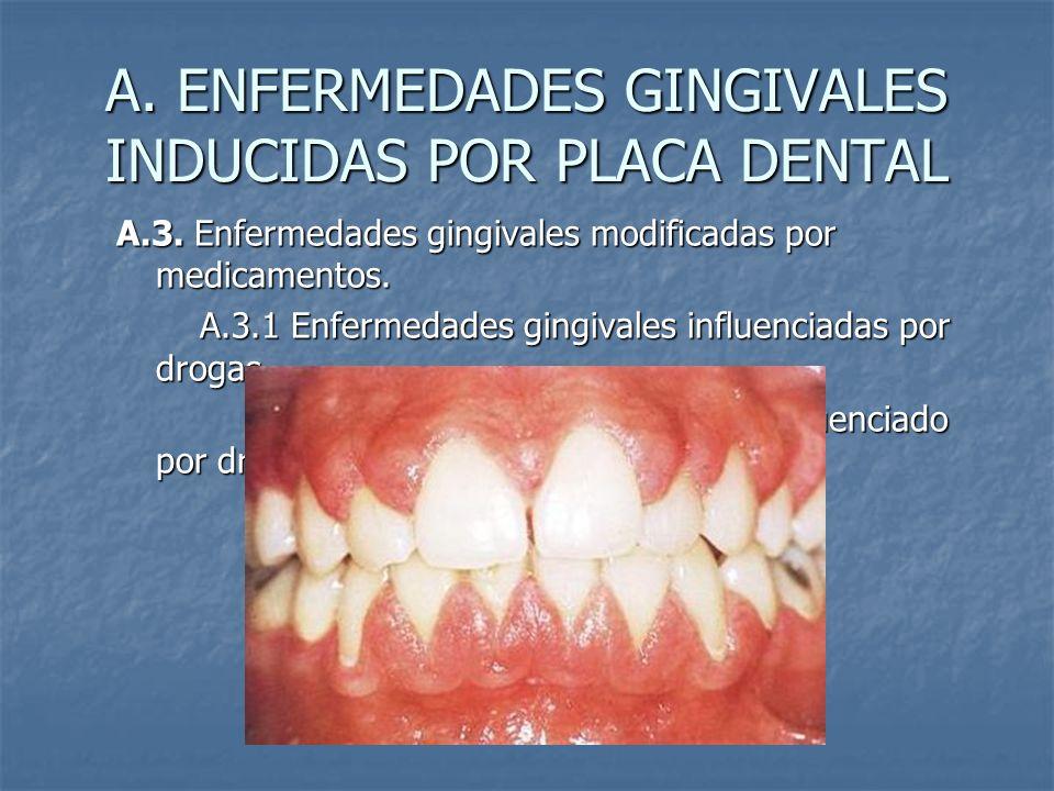 A. ENFERMEDADES GINGIVALES INDUCIDAS POR PLACA DENTAL