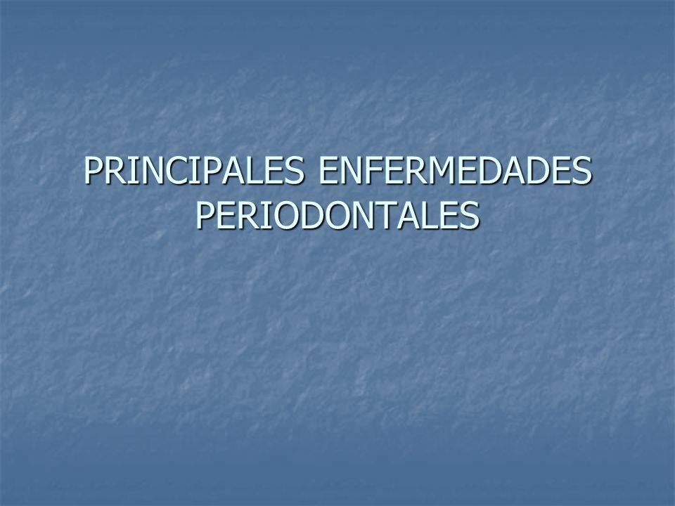 PRINCIPALES ENFERMEDADES PERIODONTALES