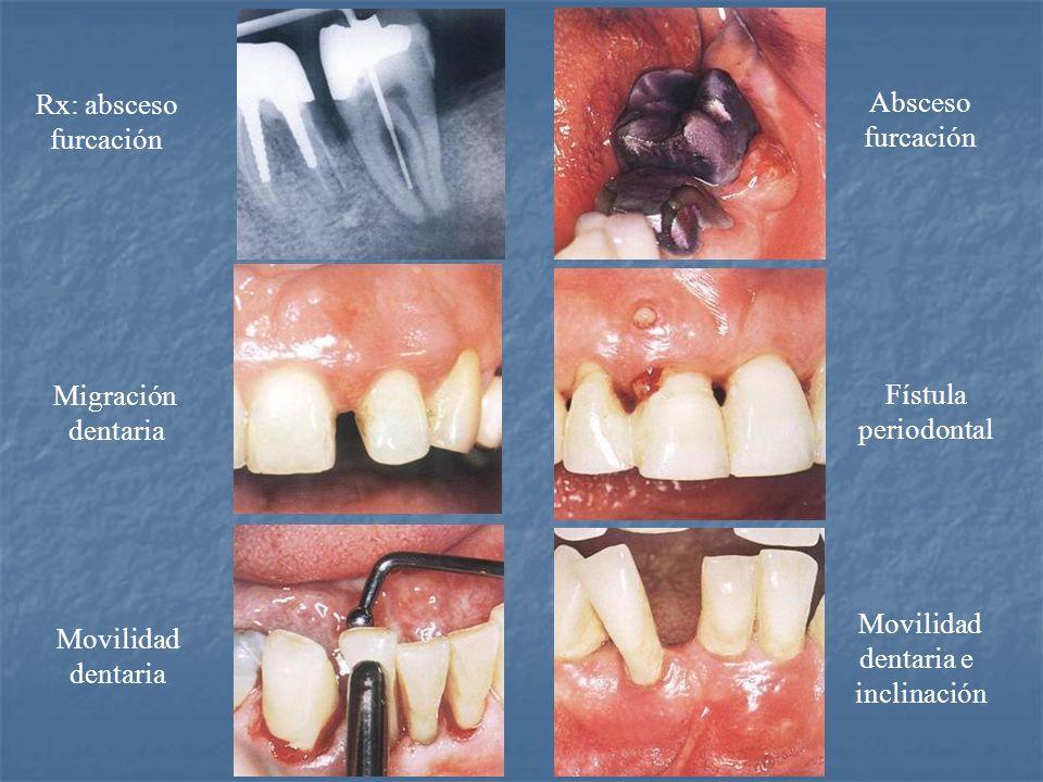 Rx: absceso furcación. Absceso. furcación. Migración. dentaria. Fístula. periodontal. Movilidad.