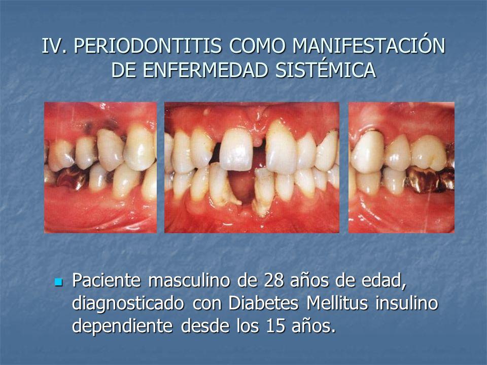 IV. PERIODONTITIS COMO MANIFESTACIÓN DE ENFERMEDAD SISTÉMICA