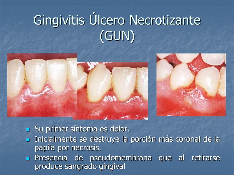 Gingivitis Úlcero Necrotizante (GUN)