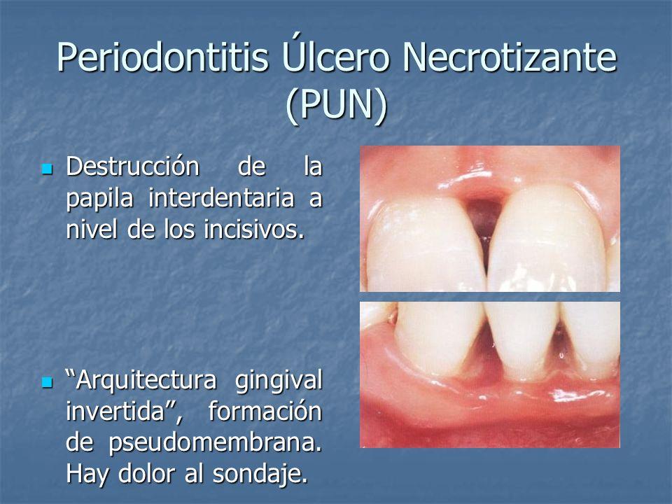 Periodontitis Úlcero Necrotizante (PUN)