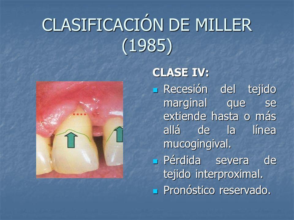 CLASIFICACIÓN DE MILLER (1985)