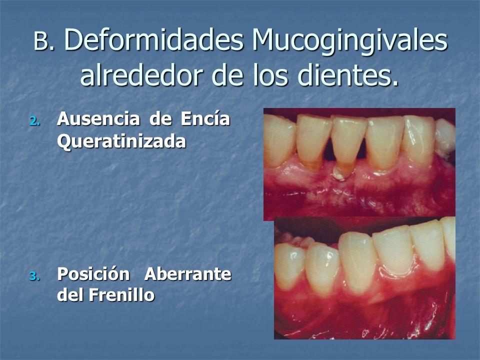 B. Deformidades Mucogingivales alrededor de los dientes.