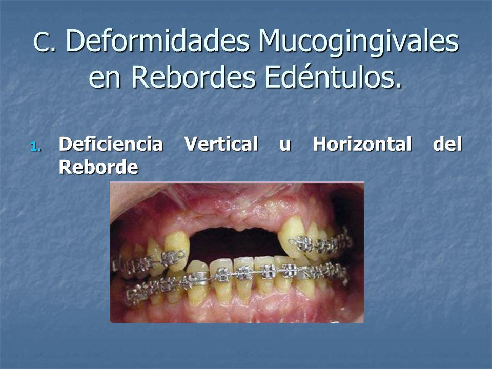 C. Deformidades Mucogingivales en Rebordes Edéntulos.