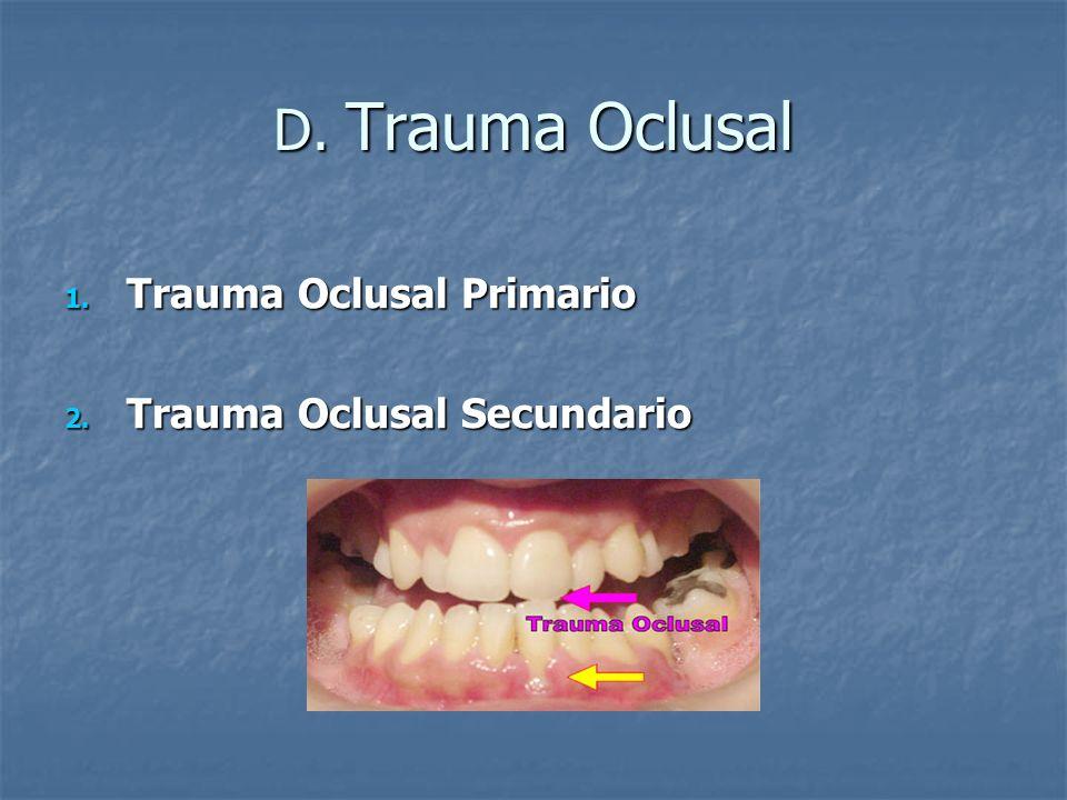 D. Trauma Oclusal Trauma Oclusal Primario Trauma Oclusal Secundario