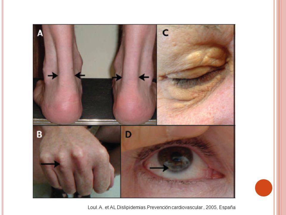 Loul. A. et AL Dislipidemias.Prevención cardiovascular , 2005, España