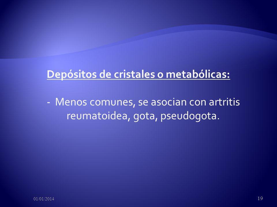 Depósitos de cristales o metabólicas: - Menos comunes, se asocian con artritis reumatoidea, gota, pseudogota.