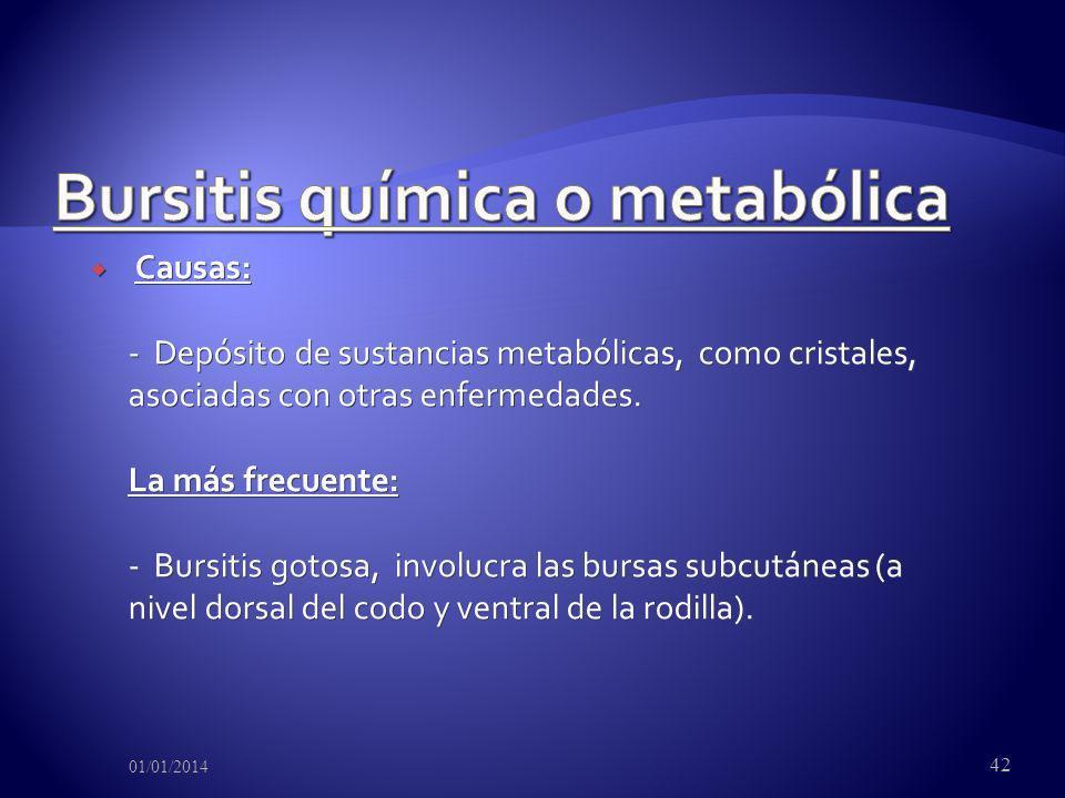 Bursitis química o metabólica