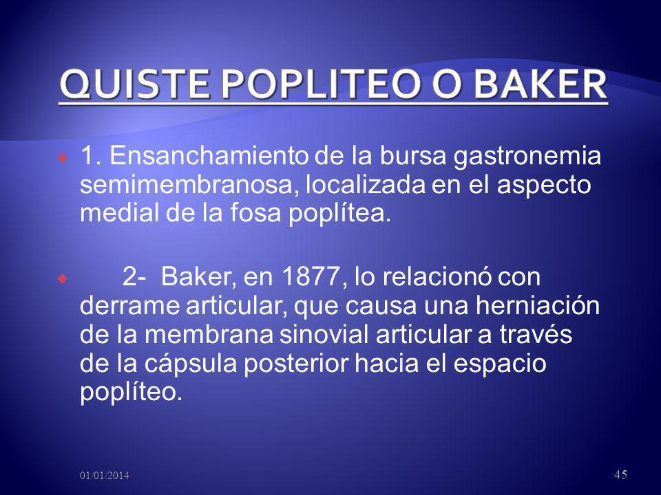 QUISTE POPLITEO O BAKER