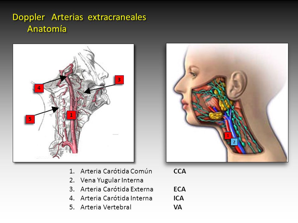 Doppler Arterias extracraneales Anatomía - ppt video online descargar