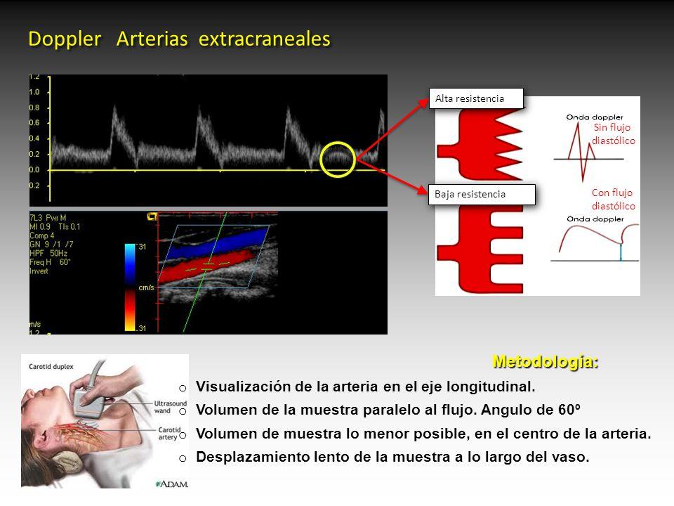 Dorable Anatomía Arterias Extracraneales Modelo - Imágenes de ...
