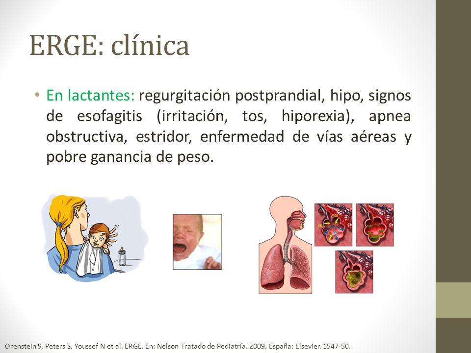 ERGE: clínica