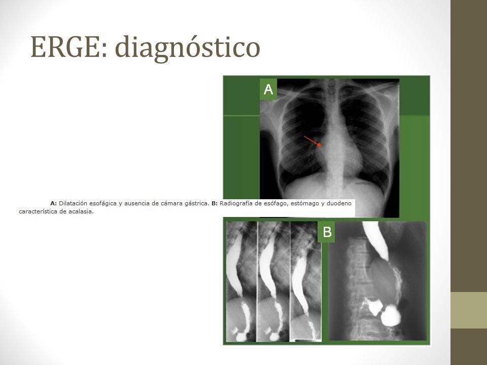ERGE: diagnóstico