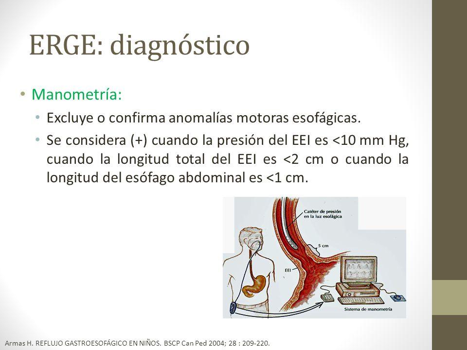 ERGE: diagnóstico Manometría: