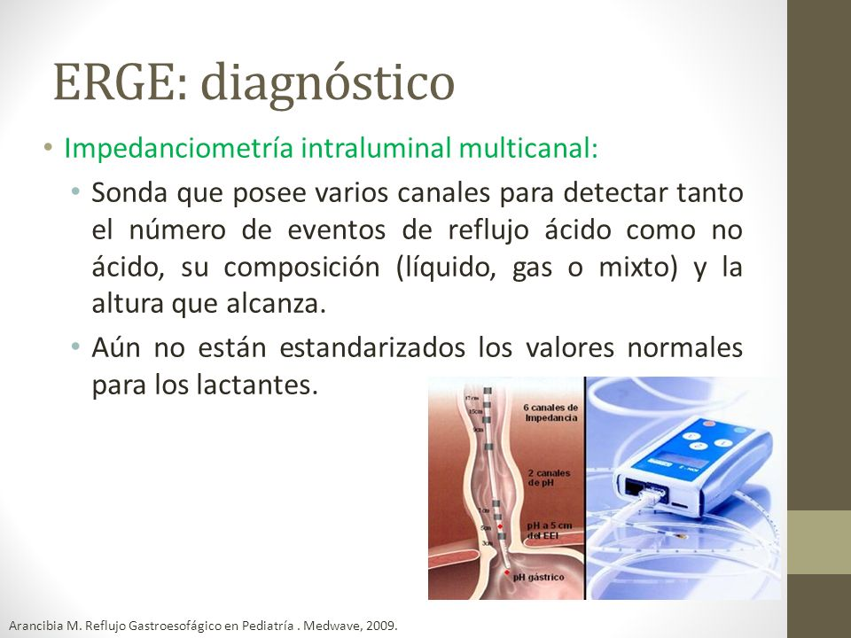 ERGE: diagnóstico Impedanciometría intraluminal multicanal: