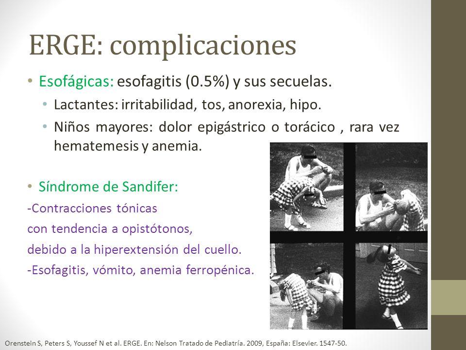 ERGE: complicaciones Esofágicas: esofagitis (0.5%) y sus secuelas.