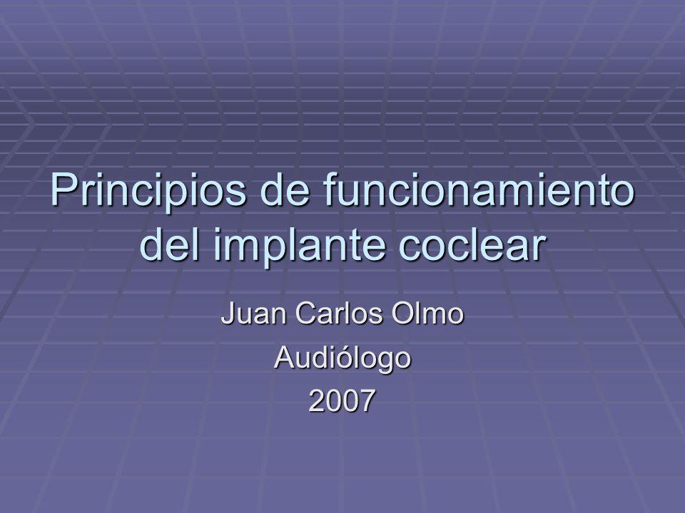 Principios de funcionamiento del implante coclear