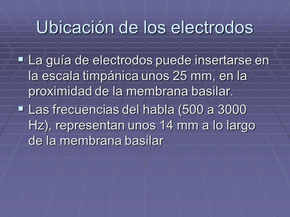 Ubicación de los electrodos