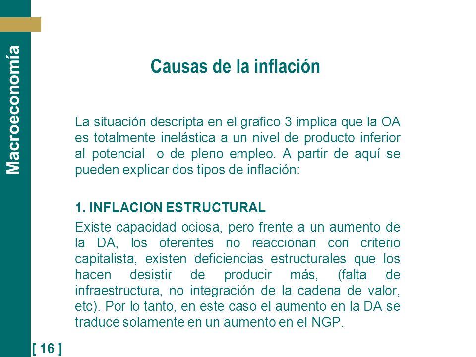 Causas de la inflación