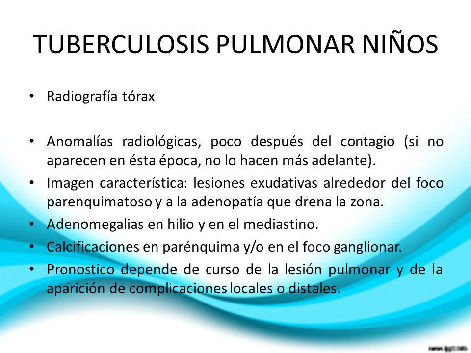 TUBERCULOSIS PULMONAR NIÑOS