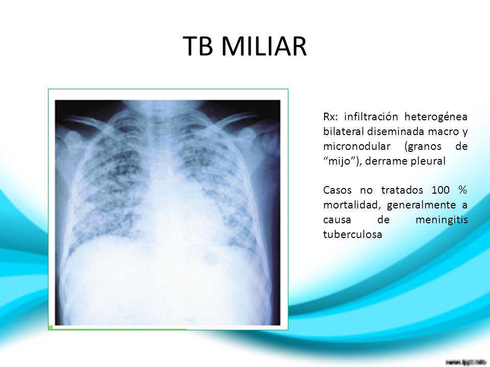 TB MILIARRx: infiltración heterogénea bilateral diseminada macro y micronodular (granos de mijo ), derrame pleural.