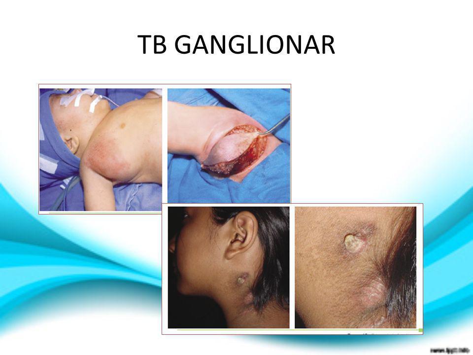 TB GANGLIONAR