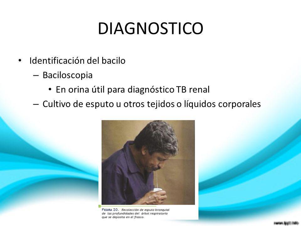 DIAGNOSTICO Identificación del bacilo Baciloscopia