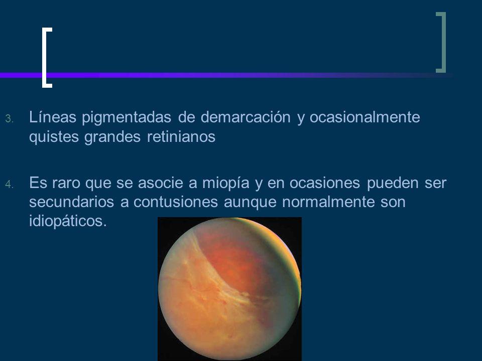 Líneas pigmentadas de demarcación y ocasionalmente quistes grandes retinianos