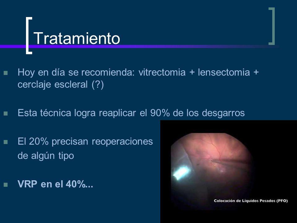 Tratamiento Hoy en día se recomienda: vitrectomia + lensectomia + cerclaje escleral ( ) Esta técnica logra reaplicar el 90% de los desgarros.