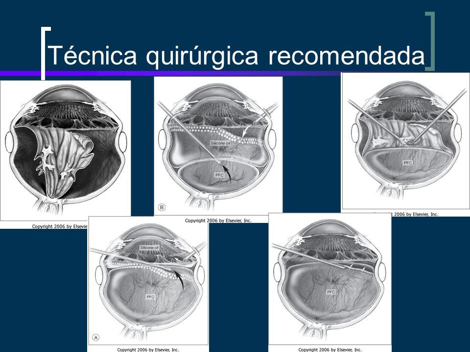 Técnica quirúrgica recomendada
