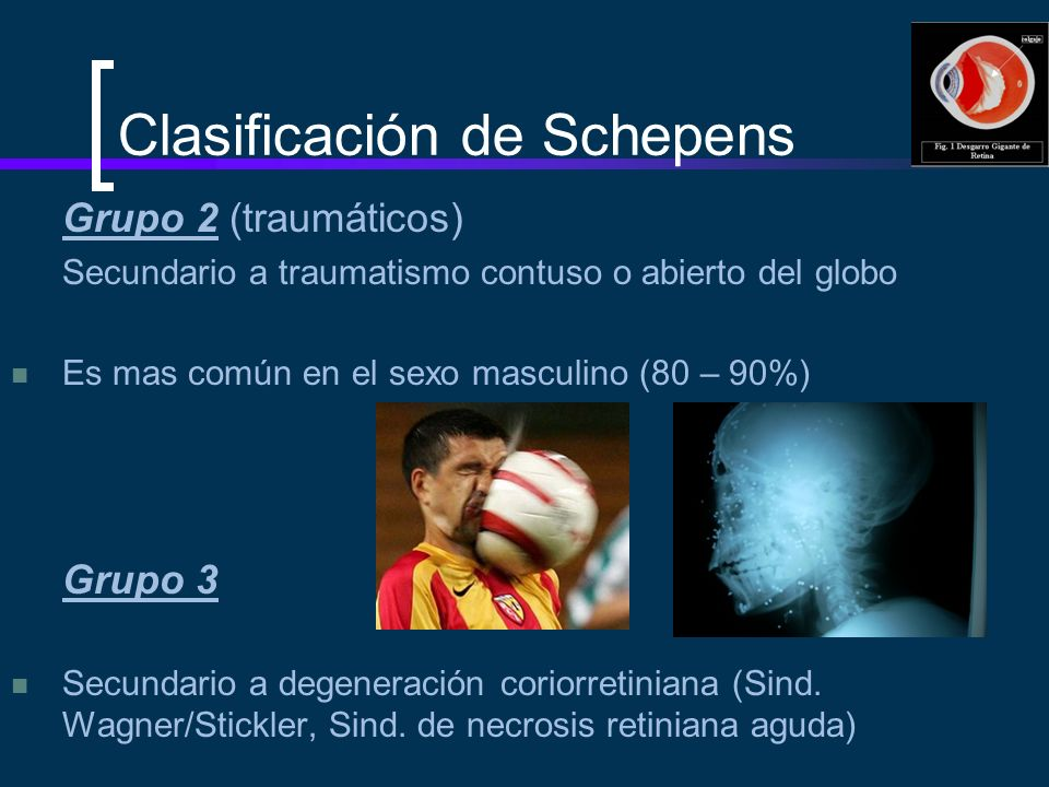 Clasificación de Schepens