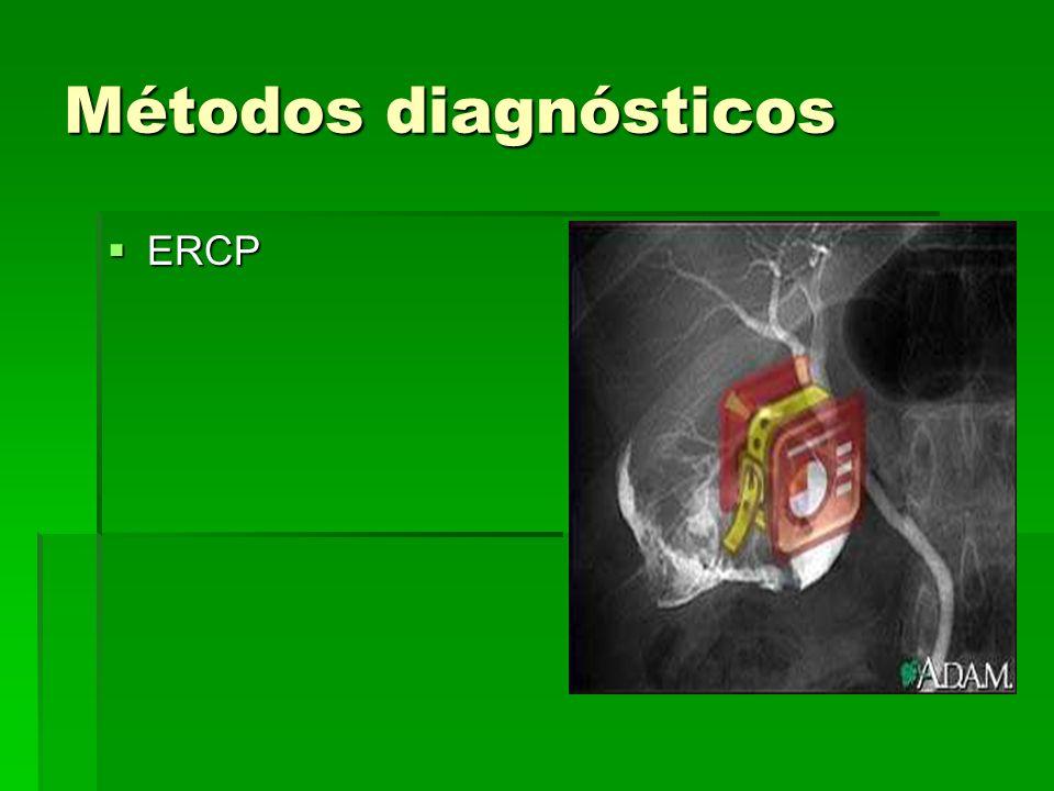 Métodos diagnósticos ERCP