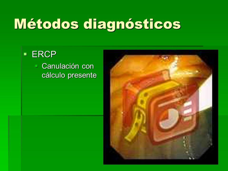 Métodos diagnósticos ERCP Canulación con cálculo presente
