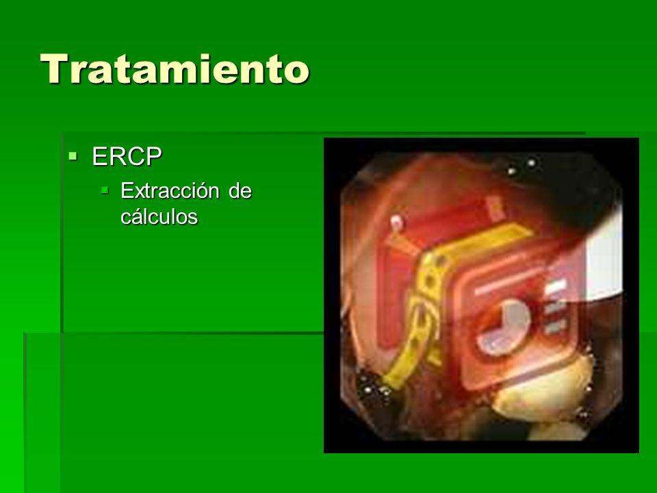 Tratamiento ERCP Extracción de cálculos
