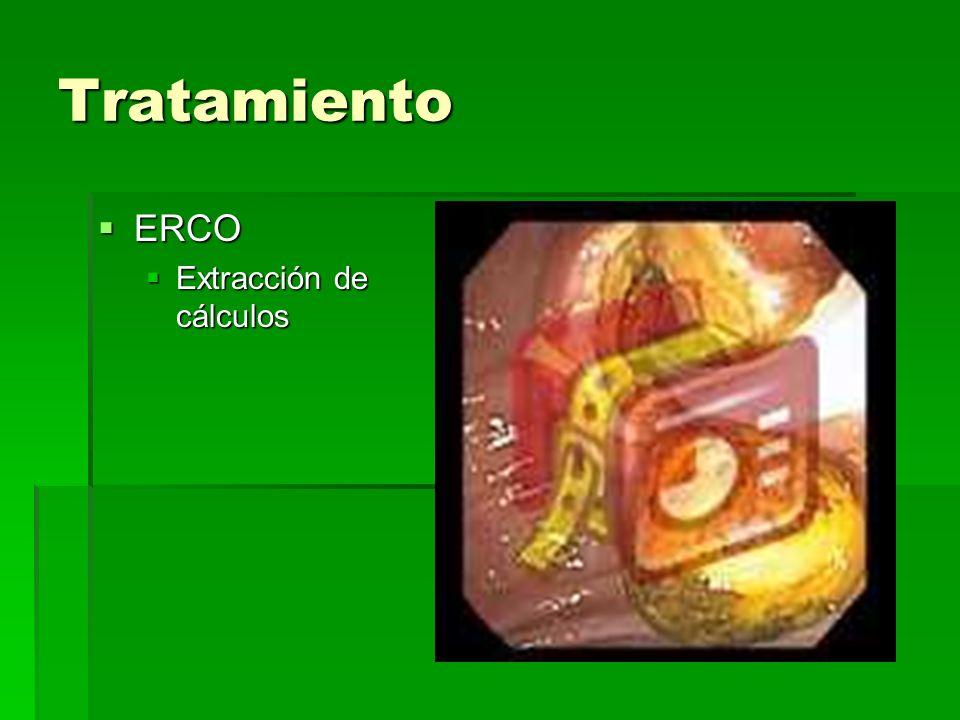 Tratamiento ERCO Extracción de cálculos