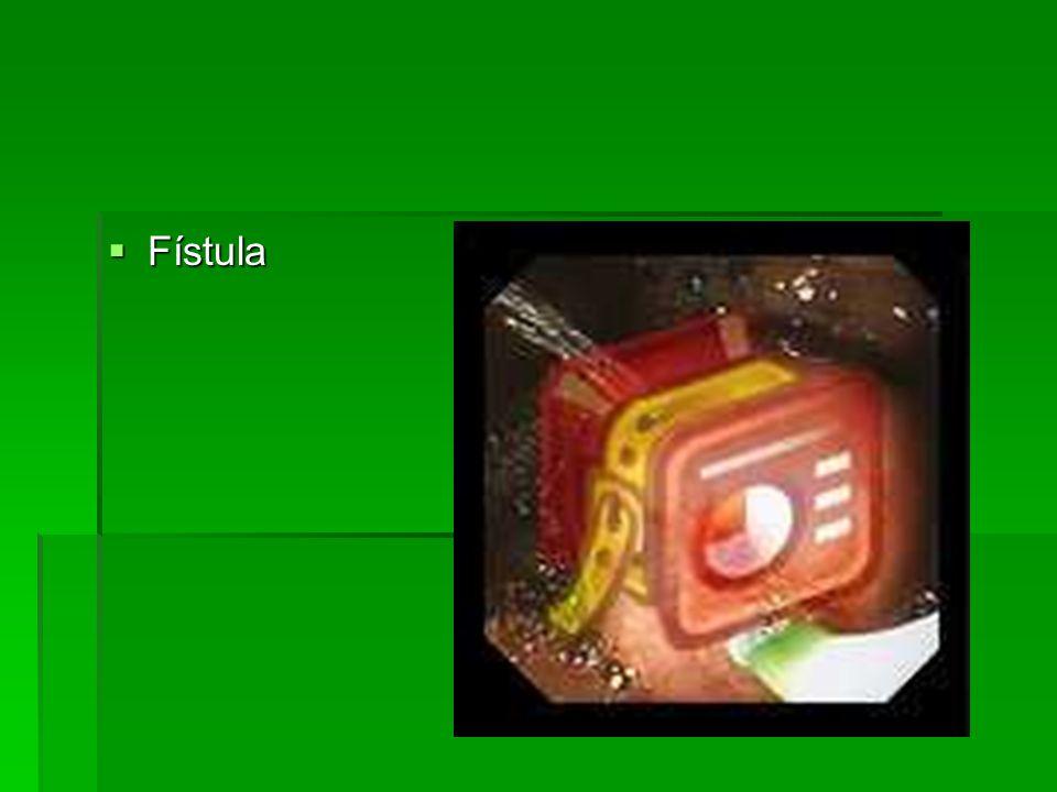 Fístula