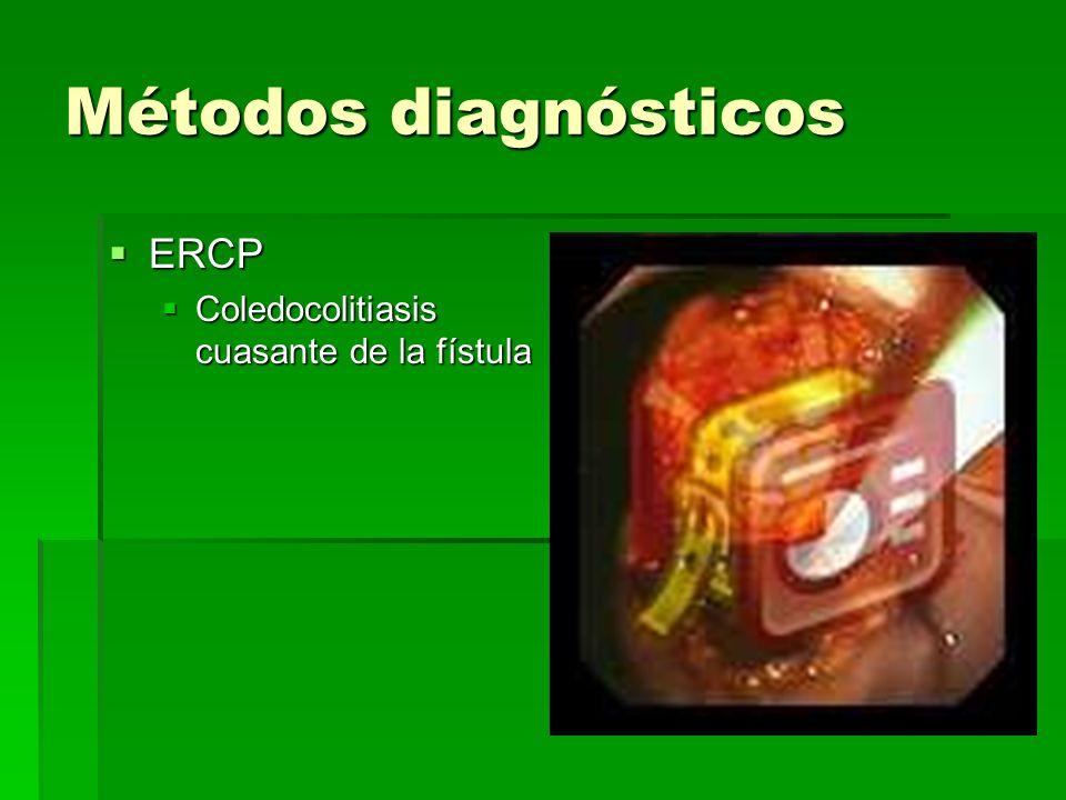 Métodos diagnósticos ERCP Coledocolitiasis cuasante de la fístula