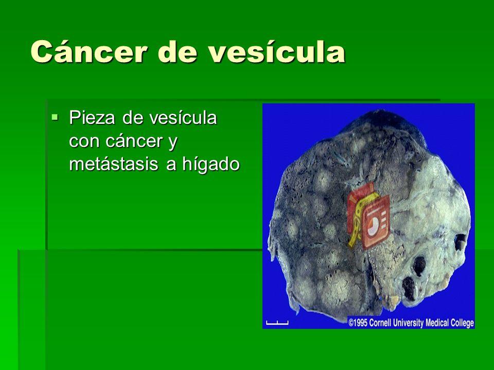 Cáncer de vesícula Pieza de vesícula con cáncer y metástasis a hígado