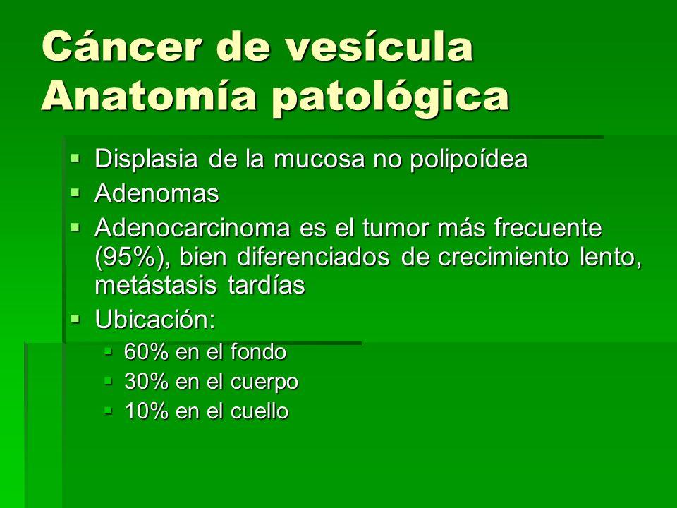 Cáncer de vesícula Anatomía patológica
