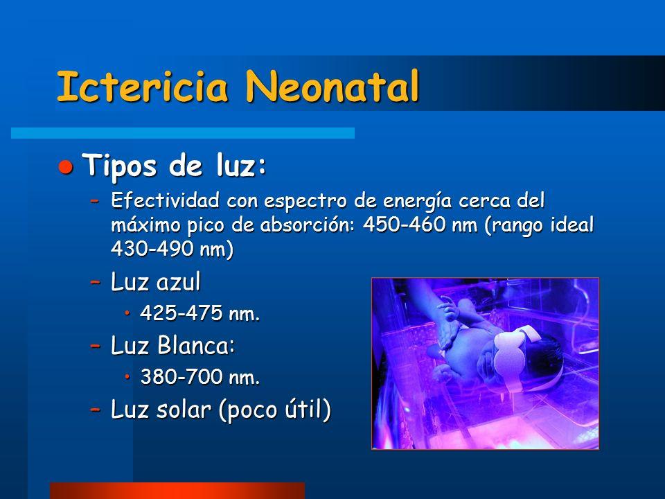 Ictericia Neonatal Tipos de luz: Luz azul Luz Blanca: