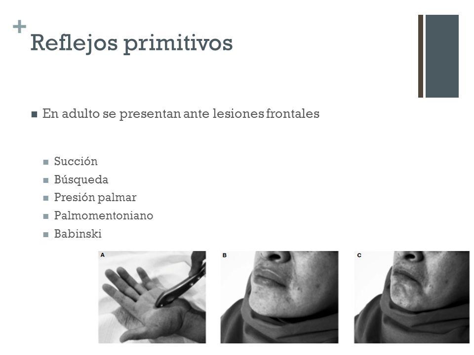 Reflejos primitivos En adulto se presentan ante lesiones frontales