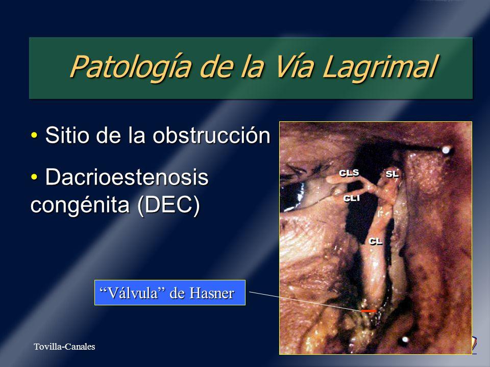 Patología de la Vía Lagrimal