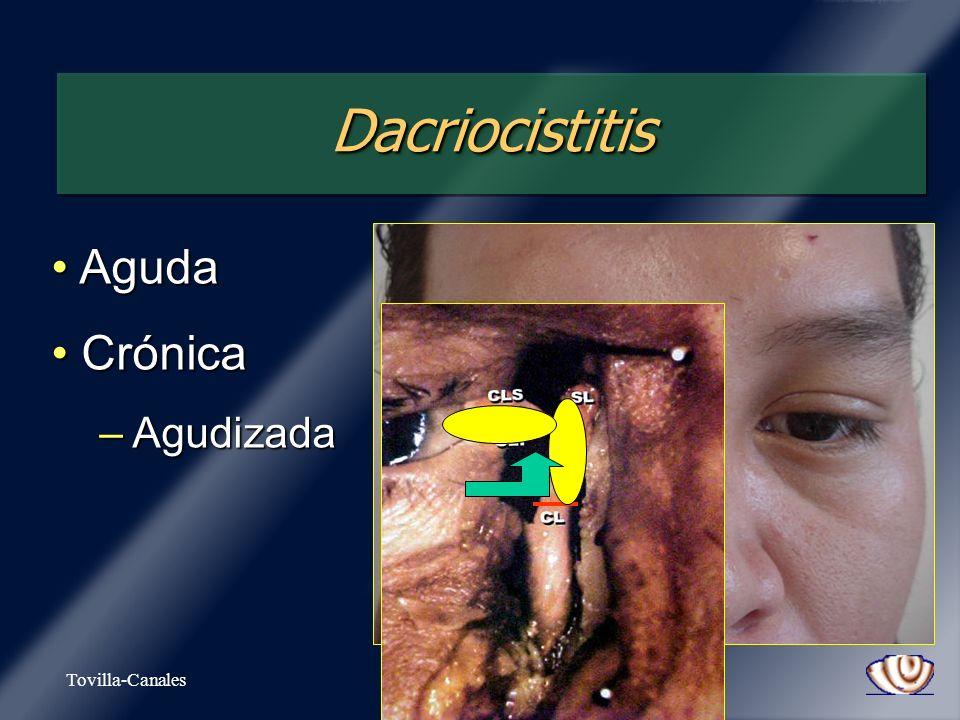 Dacriocistitis Aguda Crónica Agudizada Tovilla-Canales