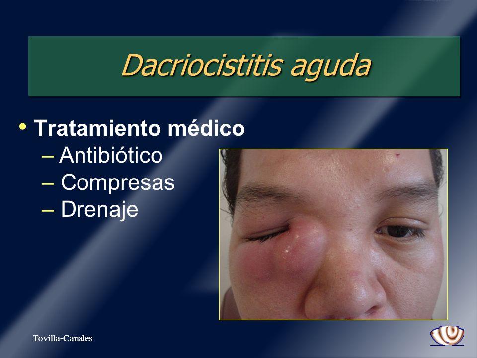 Dacriocistitis aguda Tratamiento médico Antibiótico Compresas Drenaje