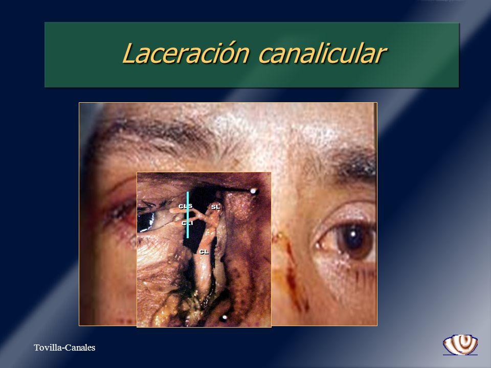 Laceración canalicular